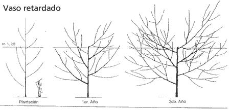 Estructura tipo vaso
